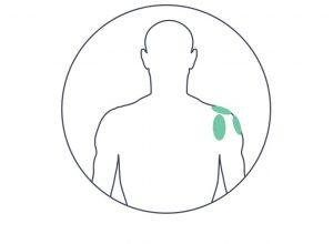כאבים בכתף- טיפול עם מכשיר הבי קיור לייזר
