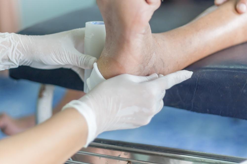 פצעים קשיי ריפוי טיפול בלייזר רך