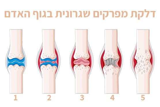 התפתחות דלקת מפרקים שגרונית במפרקים