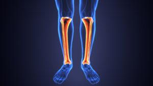 שין ספלינט וכאבים בכף הרגל